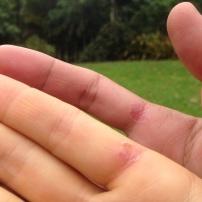 Matching gardening blisters